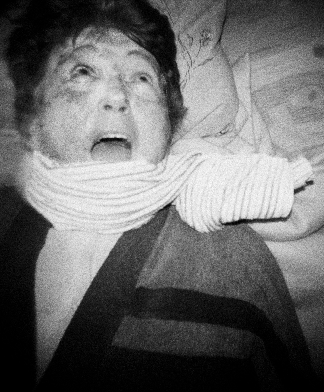 Strangulation with a towel, an elderly woman, a victim of a robbery, numerous blood extravasations,  Łódź